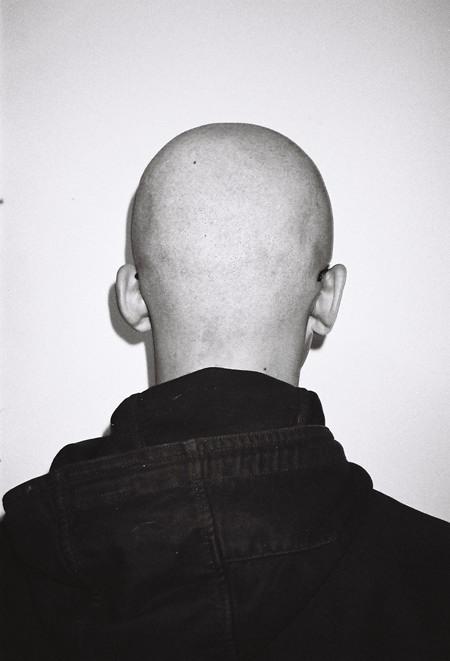 back-head